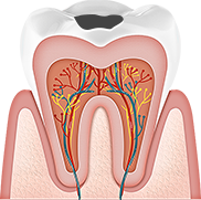치아표면우식