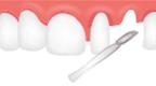 치아 삭제